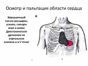 Дрожание в области сердца