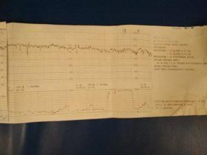 Расшифровка КТГ 40 недель