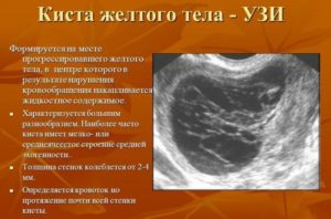 Киста жёлтого тела или беременность
