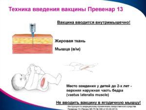 Вакцинация АКДС-Превенар-13