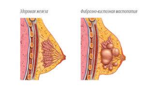 Об установке спирали Мирена при фиброзно-кистозной мастопатии