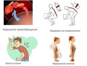 Всд и остеохондроз