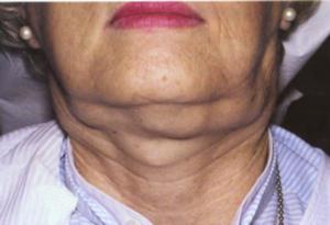 Гиперплазия лимфоузлов шеи