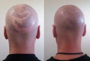 Волосы на шраме