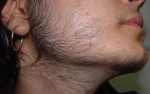 Плохо растут волосы на теле