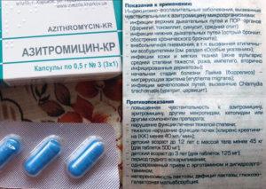 Стоит ли принимать антибиотик при зелёных выделениях