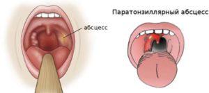 Твердая безболезненная шишка на задней стенке горла справа