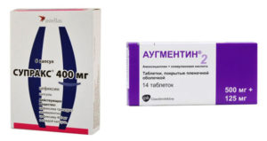 Аугментин или супракс