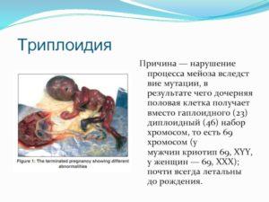 Замершая беременность, триплоидия