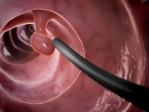 Колоноскопия после удаления полипа