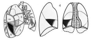 Очаг в сегменте S10 левого легкого