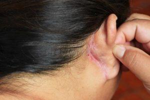 Мокнущие кроваточащие раны за ушами у ребенка 4,5 лет