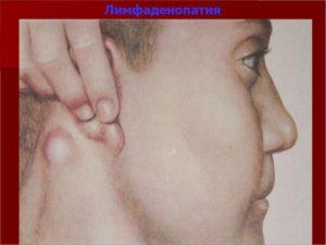 Лимфаденопатия шейных лимфоузлов неясного генезиса