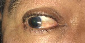 Складка на белке глаза