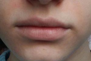Кожа вокруг рта белая