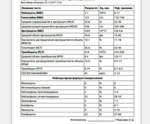 Эозинофилы у ребенка повышены до 28