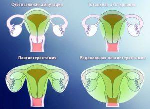 Выделения через год после удаления матки с придатками