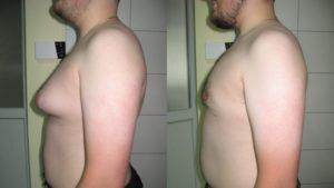 Тубулярная форма груди подросток