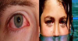 Что делать если в глаз попал хлор