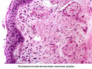 Плоскоклеточный метаплазированный эпителий