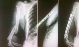 Неправильное сращение перелома в/3 плечевой кости