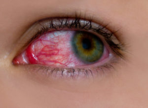 Химический ожог глаз