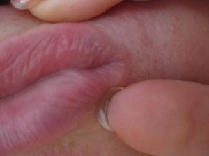 Покраснение половых губ