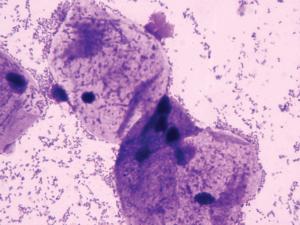 Коккобациллы в мазке