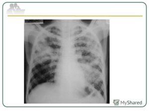 Скрытая пневмония или туберкулез