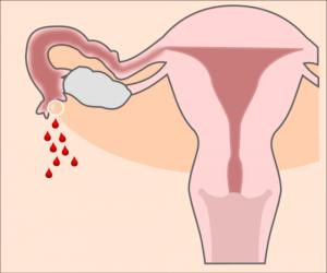 Выделение после внематочной беременности