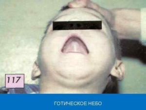 Готическое нёбо