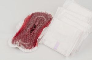 Кровотечение со сгустками в середине цикла