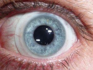 Дискомфорт от линзы на левом глазу