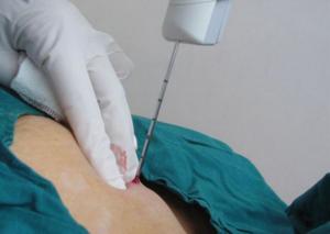 Боль после пункции молочной железы