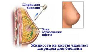 Кисты 5 мм в груди
