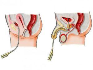 Остатки спермы в мочеиспускательном канале
