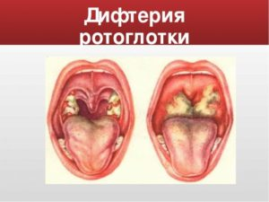 Красное горло и температура 37,4