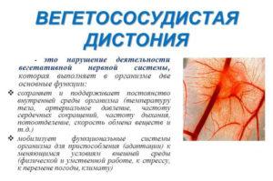 Диагноз вегето-сосудистая дистонию g90.8, как лечить?