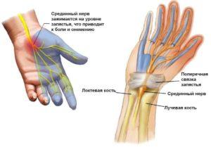 Болит локоть немеют пальцы