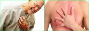 Невралгия отдает в молочную железу