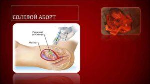 Прерывание беременности на 14 неделе
