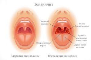 Тонзиллит, ком в горле