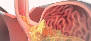 Рефлюкс, отрыжка, изжога, ком в горле, распирание в пищеводе