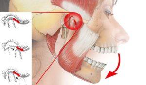 Постоянное напряжение челюсти