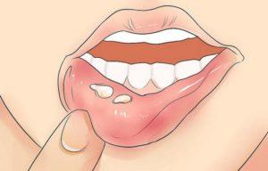 Высыпания на внутренней стороне губы