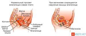 Сокращения мышц влагалища