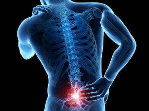 Боли в пояснично-кресцовом отделе позвоночника