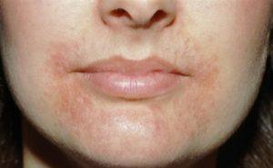 Сыпь на подбородке вокруг носа и на лбу