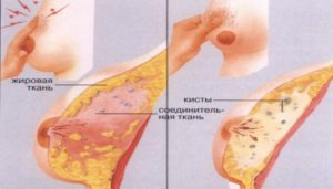 Почему не болит грудь перед месячными