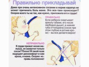 Чем можно заменить полижинакс во время кормления грудью